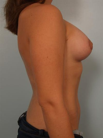 Tuberous Breast Surgery Gallery - Patient 1310559 - Image 6