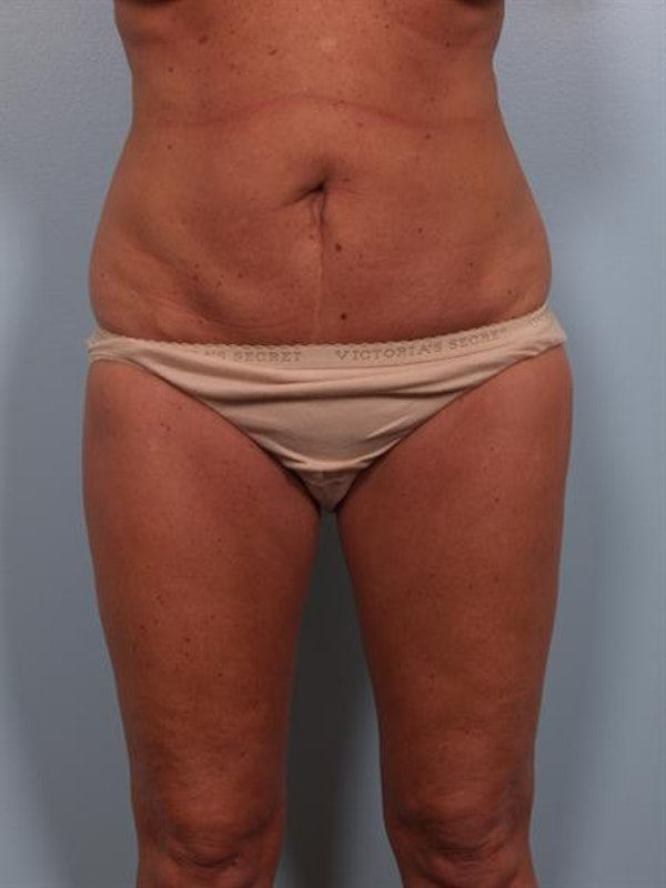 Breast Reduction Gallery - Patient 1310563 - Image 5