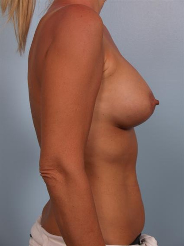 Breast Lift Gallery - Patient 1310561 - Image 6