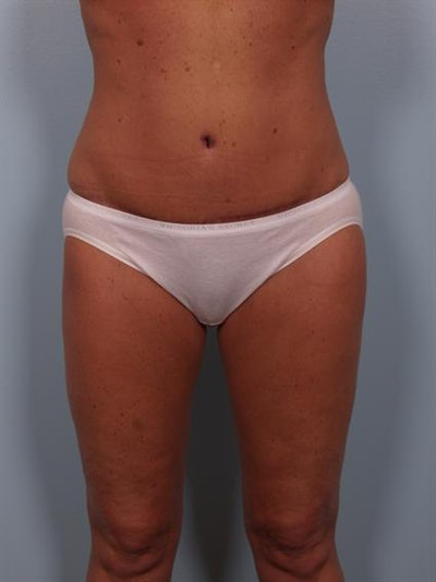 Breast Reduction Gallery - Patient 1310563 - Image 6