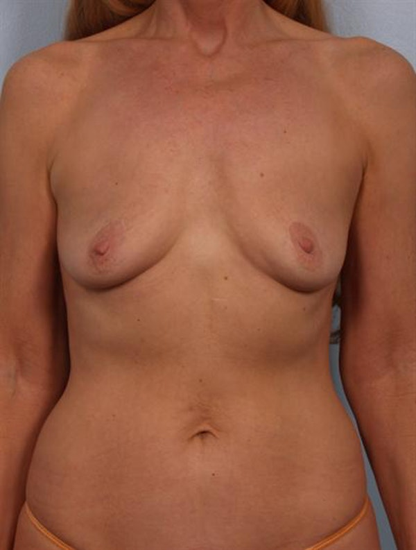 Breast Augmentation Gallery - Patient 1310566 - Image 1