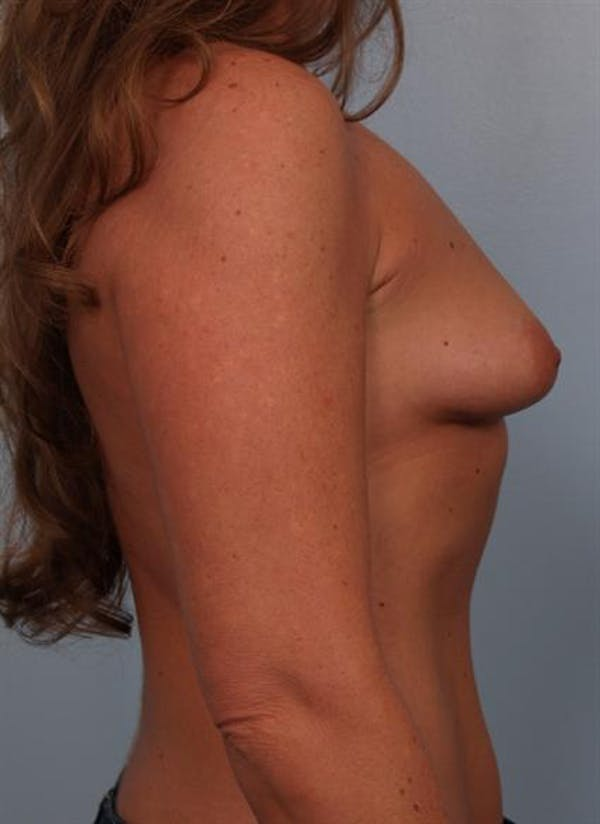 Tuberous Breast Surgery Gallery - Patient 1310567 - Image 3