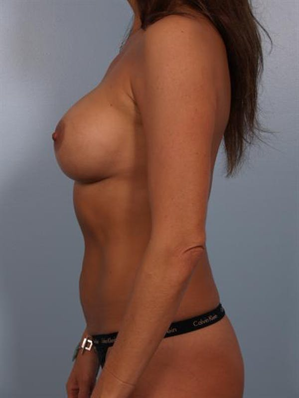 Complex Breast Revision Gallery - Patient 1310569 - Image 3