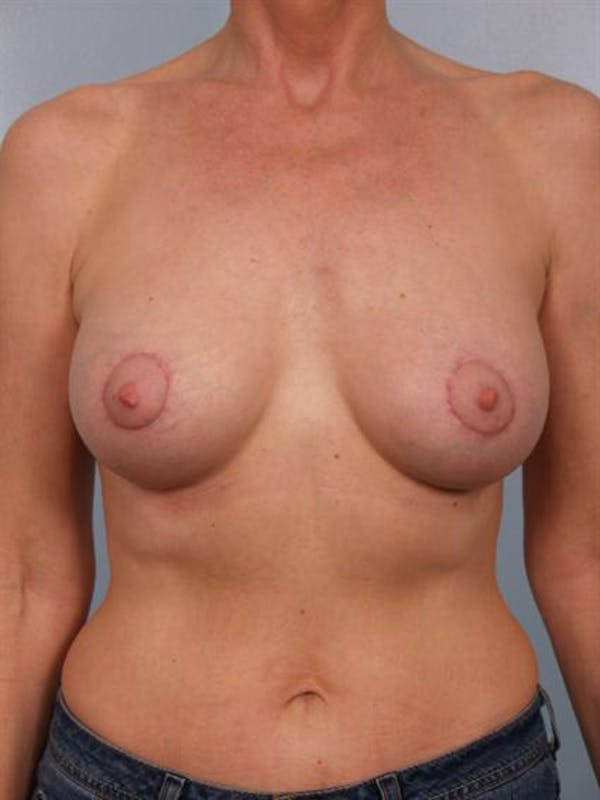 Breast Augmentation Gallery - Patient 1310566 - Image 2