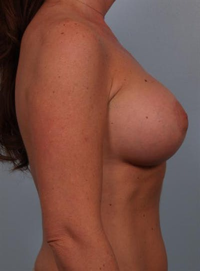 Tuberous Breast Surgery Gallery - Patient 1310567 - Image 4