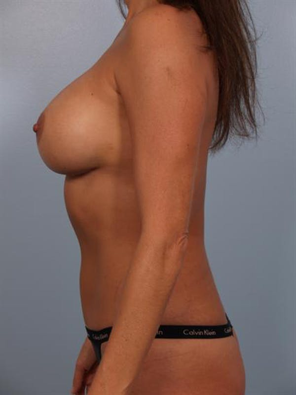 Complex Breast Revision Gallery - Patient 1310569 - Image 4