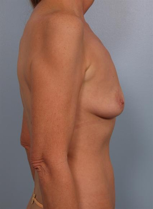Breast Augmentation Gallery - Patient 1310566 - Image 3