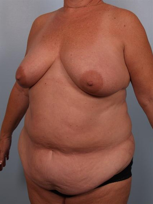 Breast Lift Gallery - Patient 1310571 - Image 3