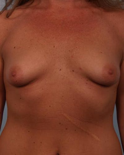 Tuberous Breast Surgery Gallery - Patient 1310567 - Image 1
