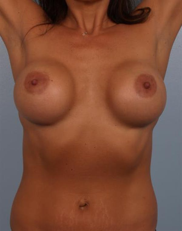 Complex Breast Revision Gallery - Patient 1310569 - Image 5