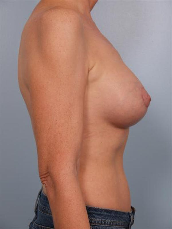 Breast Augmentation Gallery - Patient 1310566 - Image 4