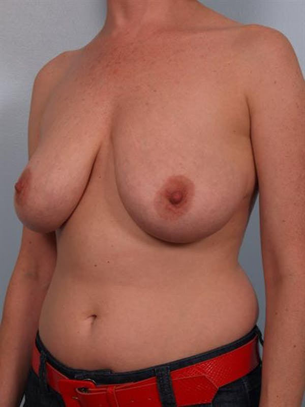 Breast Reduction Gallery - Patient 1310568 - Image 3