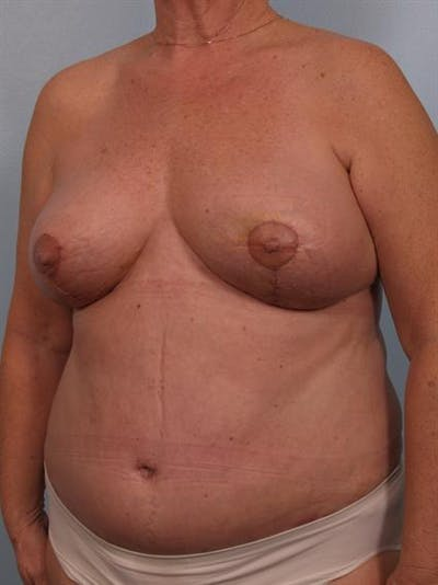Breast Lift Gallery - Patient 1310571 - Image 4