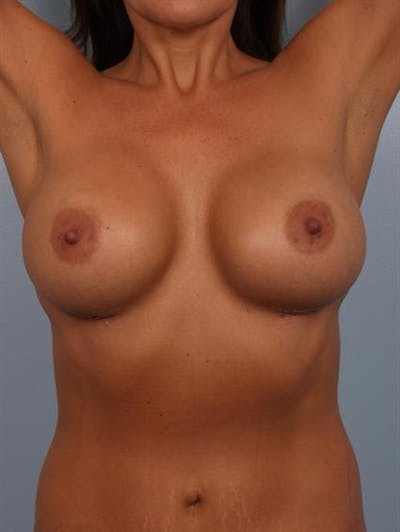 Complex Breast Revision Gallery - Patient 1310569 - Image 6