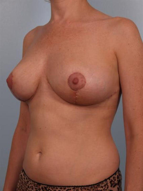 Breast Reduction Gallery - Patient 1310568 - Image 4