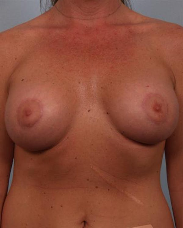 Tuberous Breast Surgery Gallery - Patient 1310567 - Image 2