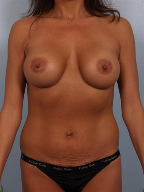 Complex Breast Revision Gallery - Patient 1310569 - Image 1