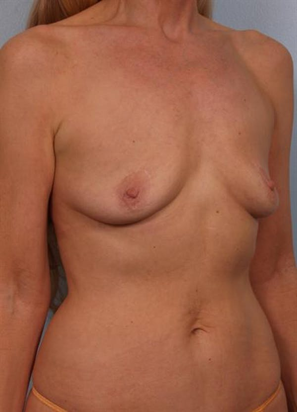 Breast Augmentation Gallery - Patient 1310566 - Image 5