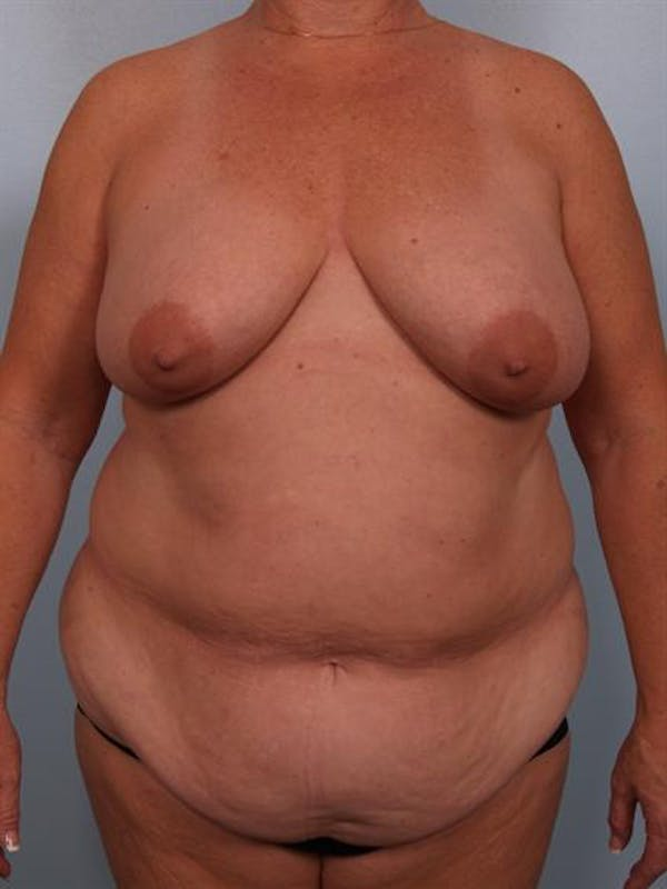 Breast Lift Gallery - Patient 1310571 - Image 1