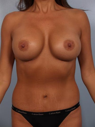Complex Breast Revision Gallery - Patient 1310569 - Image 2