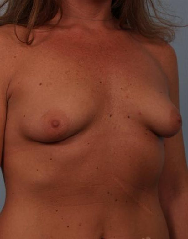 Tuberous Breast Surgery Gallery - Patient 1310567 - Image 5