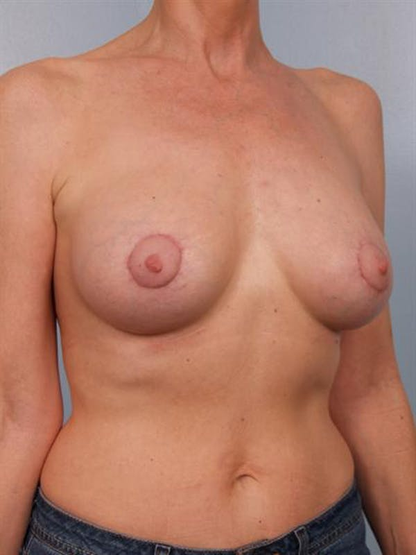 Breast Augmentation Gallery - Patient 1310566 - Image 6