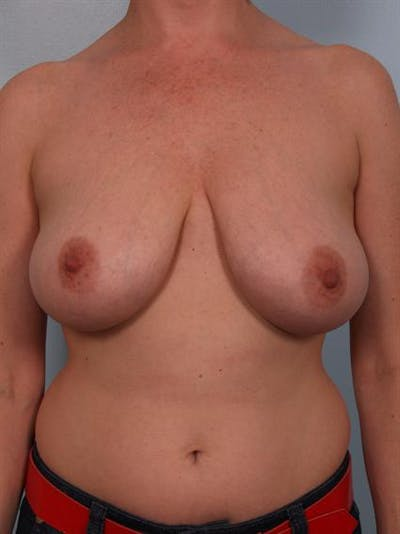 Breast Reduction Gallery - Patient 1310568 - Image 1