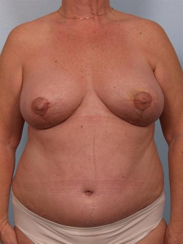 Breast Lift Gallery - Patient 1310571 - Image 2