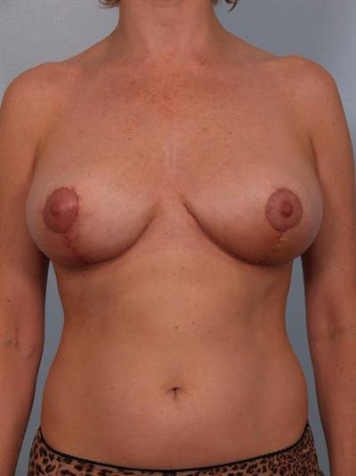 Breast Reduction Gallery - Patient 1310568 - Image 2