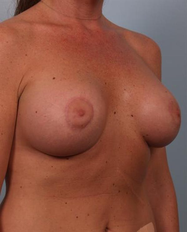 Tuberous Breast Surgery Gallery - Patient 1310567 - Image 6