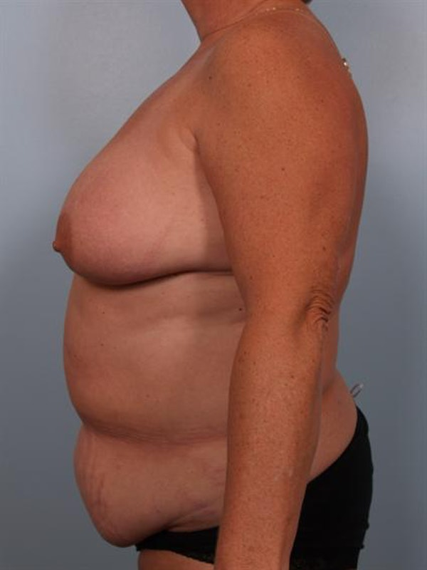 Breast Lift Gallery - Patient 1310571 - Image 5