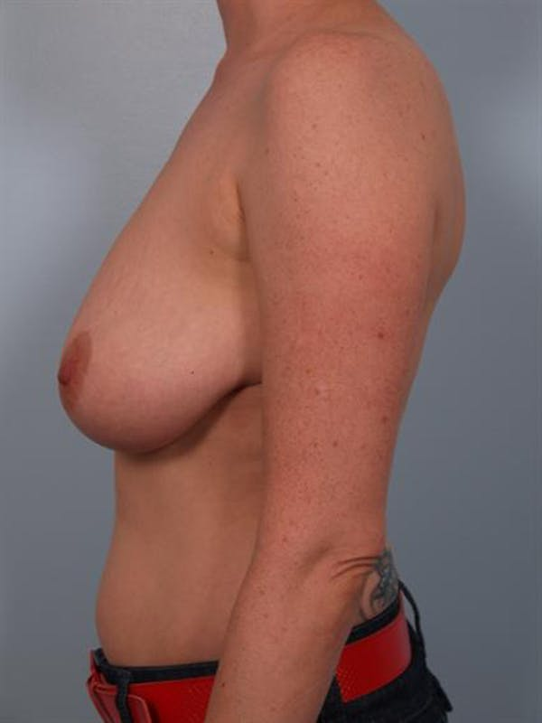 Breast Reduction Gallery - Patient 1310568 - Image 5