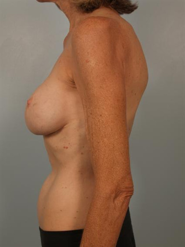 Fat Grafting Gallery - Patient 1310570 - Image 5