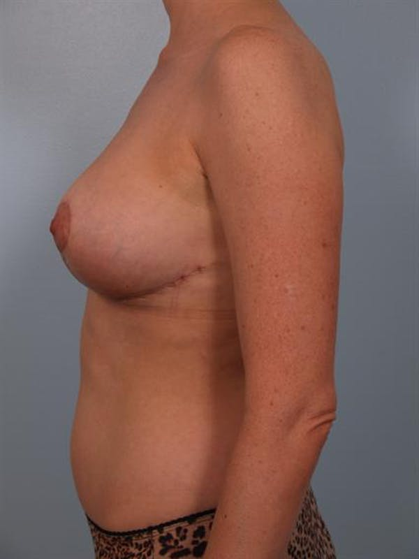 Breast Reduction Gallery - Patient 1310568 - Image 6