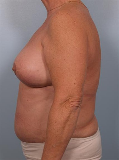 Breast Lift Gallery - Patient 1310571 - Image 6