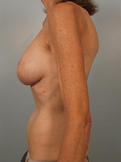 Fat Grafting Gallery - Patient 1310570 - Image 6