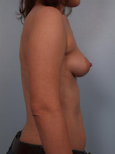 Breast Augmentation Gallery - Patient 1310575 - Image 1