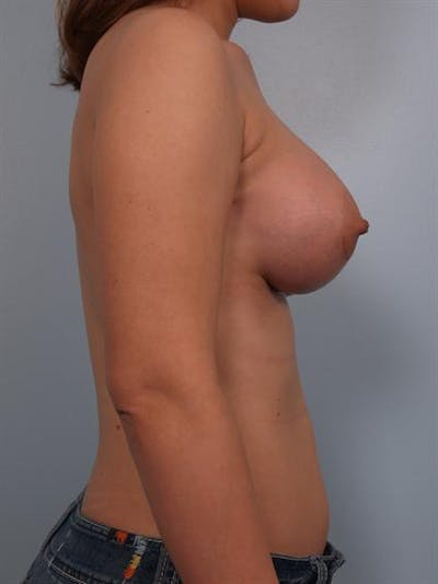 Breast Augmentation Gallery - Patient 1310575 - Image 2