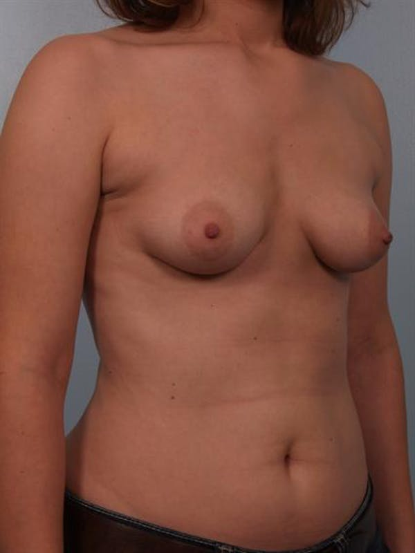 Breast Augmentation Gallery - Patient 1310575 - Image 3