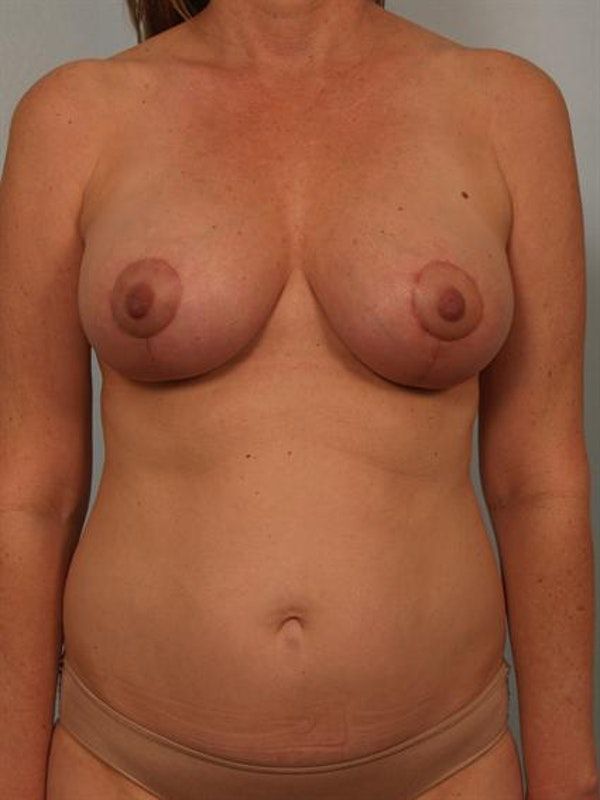 Fat Grafting Gallery - Patient 1310573 - Image 2