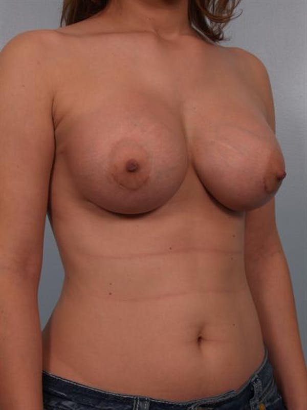Breast Augmentation Gallery - Patient 1310575 - Image 4