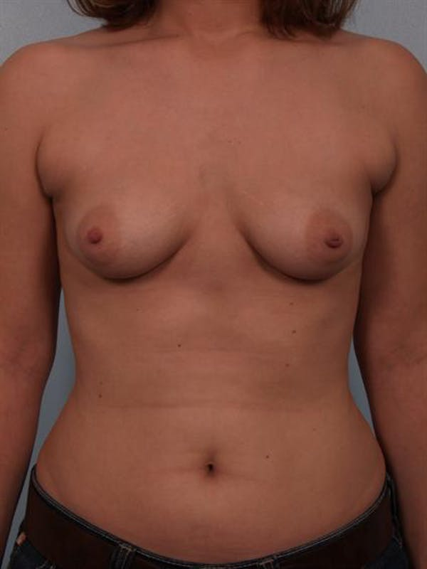 Breast Augmentation Gallery - Patient 1310575 - Image 5