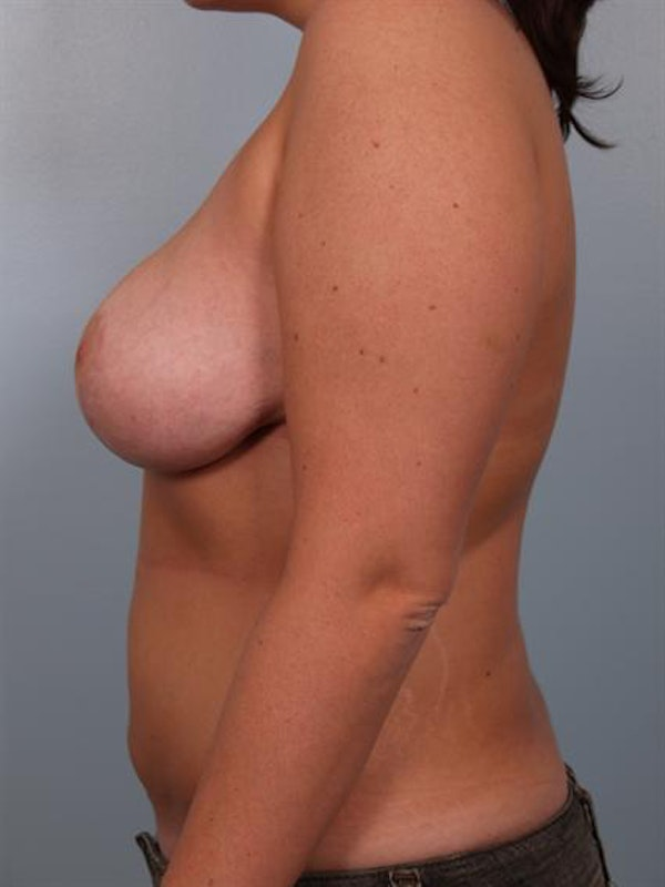 Breast Reduction Gallery - Patient 1310577 - Image 4