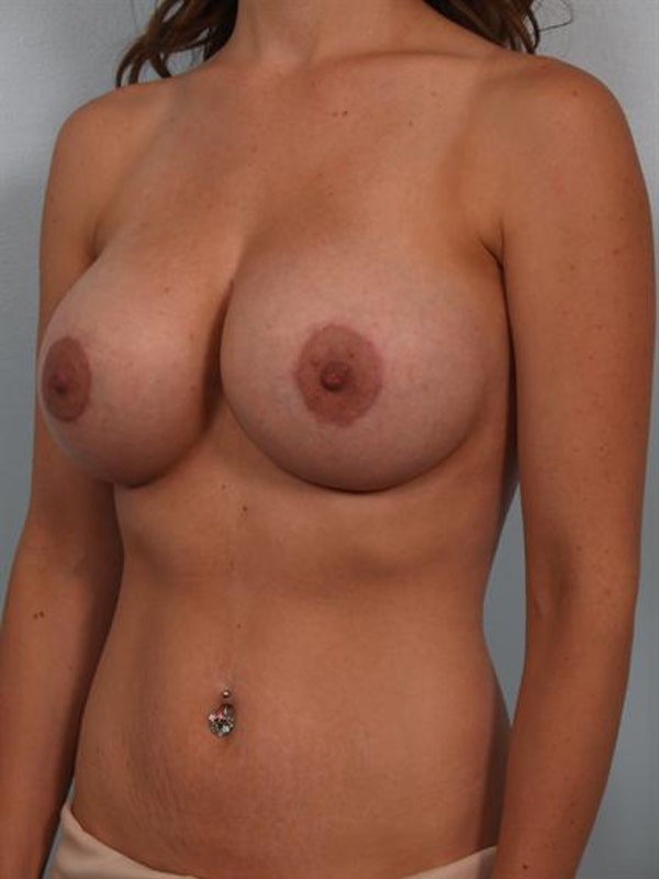 Breast Lift Gallery - Patient 1310574 - Image 4