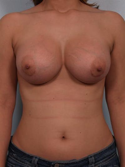 Breast Augmentation Gallery - Patient 1310575 - Image 6