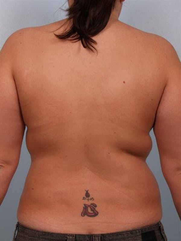Breast Reduction Gallery - Patient 1310577 - Image 6