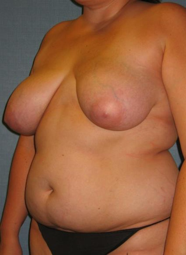 Breast Reduction Gallery - Patient 1310577 - Image 7