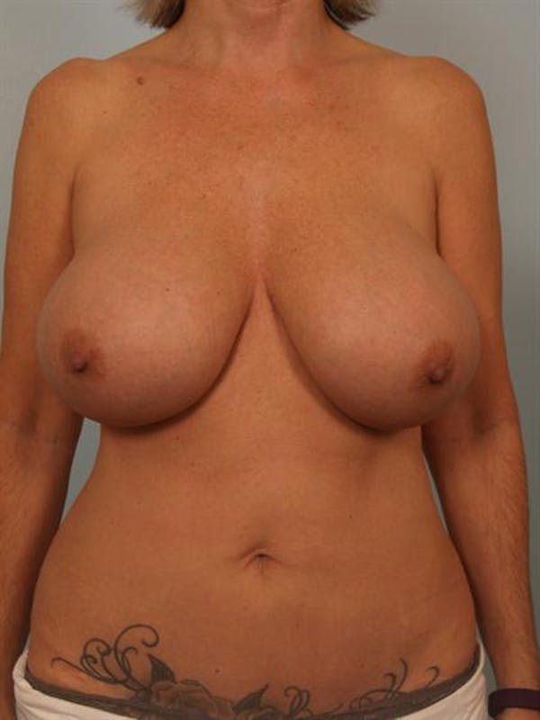 Breast Lift Gallery - Patient 1310578 - Image 1