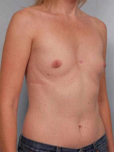 Breast Augmentation Gallery - Patient 1310582 - Image 1