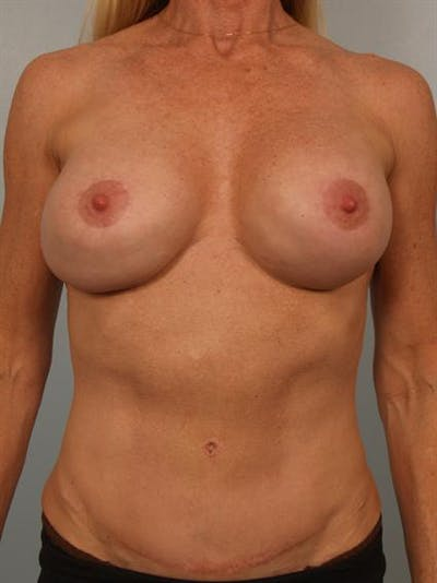 Complex Breast Revision Gallery - Patient 1310581 - Image 1